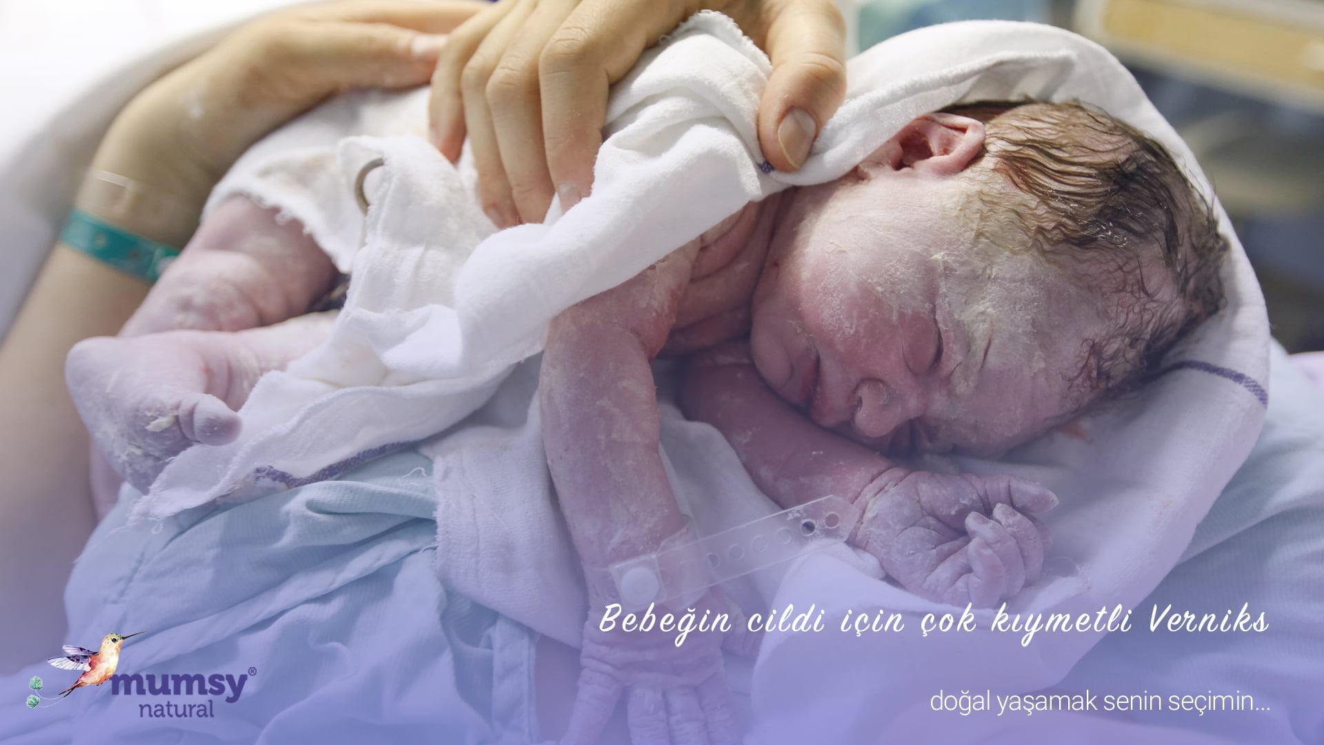 Bebeğin cildi için Kıymetli Verniks Verniks: Bebeğiniz cildini verniks koruyor
